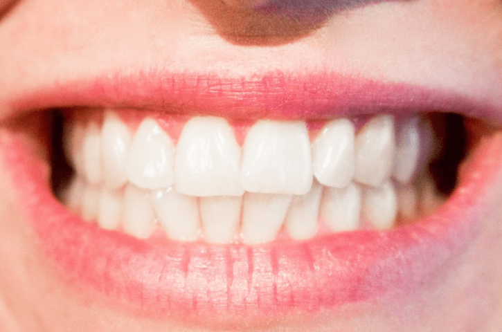 Things to consider before choosing a cosmetic dentist